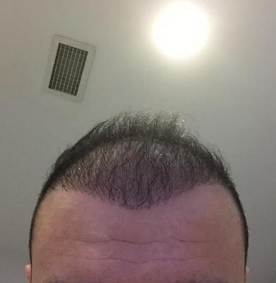 hair-transplant-cost-turkey (20)