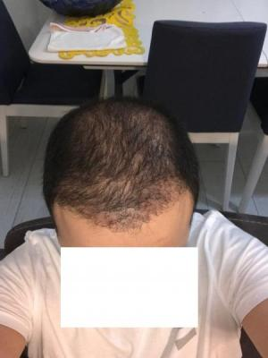 hair-transplant-cost-turkey (21)