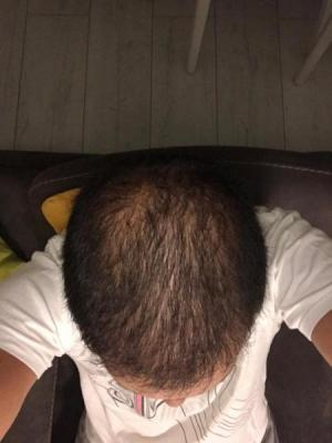hair-transplant-cost-turkey (22)