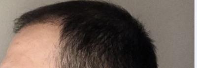 hair-transplant-cost-turkey (23)