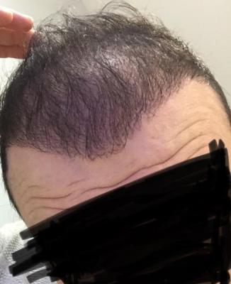 hair-transplant-cost-turkey (23)
