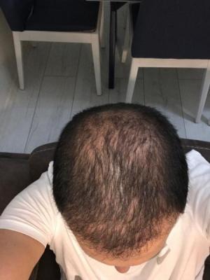 hair-transplant-cost-turkey (24)