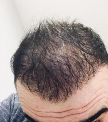 hair-transplant-cost-turkey (26)