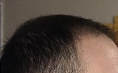 hair-transplant-cost-turkey (27)