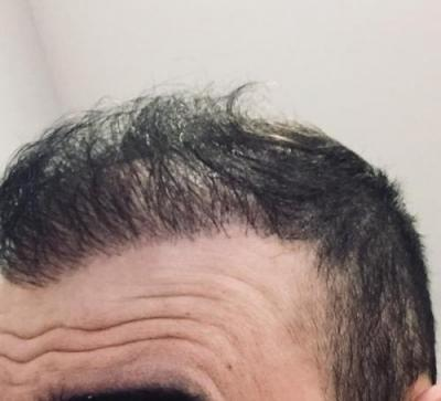 hair-transplant-cost-turkey (28)