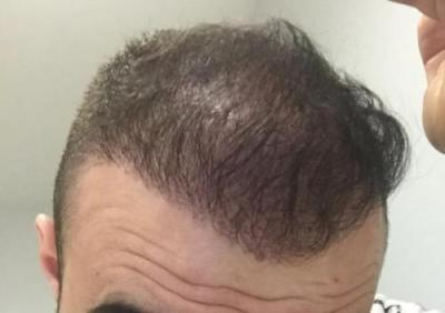 hair-transplant-cost-turkey (29)