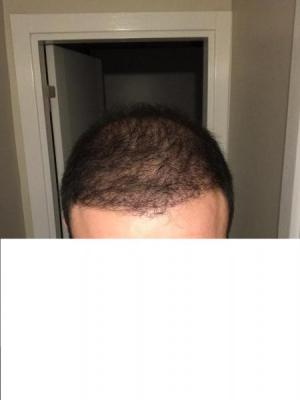 hair-transplant-cost-turkey (3)