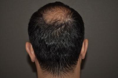 hair-transplant-cost-turkey (30)