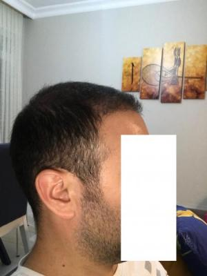 hair-transplant-cost-turkey (31)