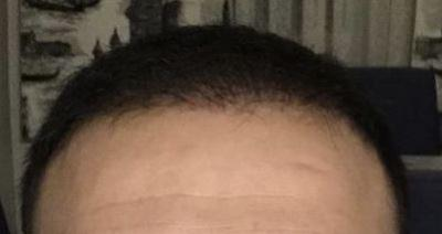 hair-transplant-cost-turkey (32)