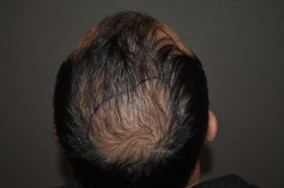 hair-transplant-cost-turkey (33)