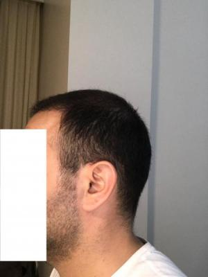 hair-transplant-cost-turkey (34)