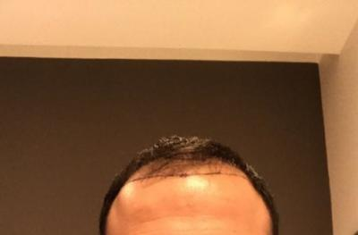 hair-transplant-cost-turkey (35)