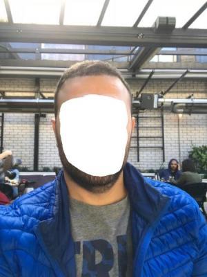 hair-transplant-cost-turkey (38)
