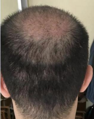 hair-transplant-cost-turkey (4)
