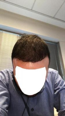 hair-transplant-cost-turkey (41)