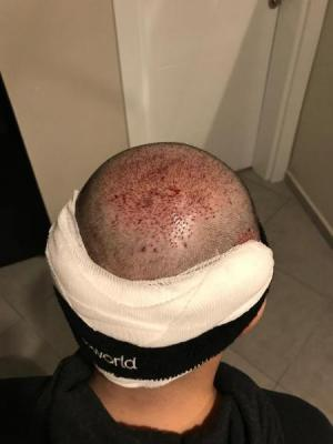 hair-transplant-cost-turkey (42)