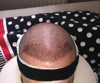 hair-transplant-cost-turkey (44)
