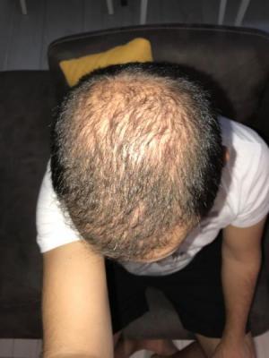 hair-transplant-cost-turkey (45)