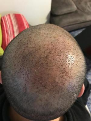 hair-transplant-cost-turkey (46)