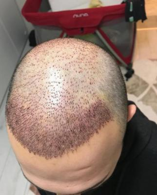hair-transplant-cost-turkey (47)
