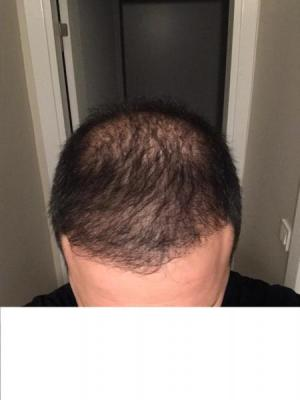 hair-transplant-cost-turkey (5)