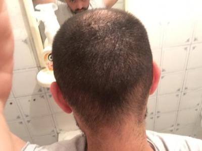 hair-transplant-cost-turkey (6)