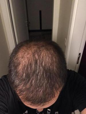 hair-transplant-cost-turkey (7)