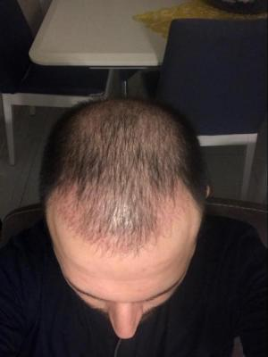 hair-transplant-cost-turkey (8)