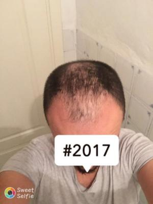 hair-transplant-cost-turkey (9)