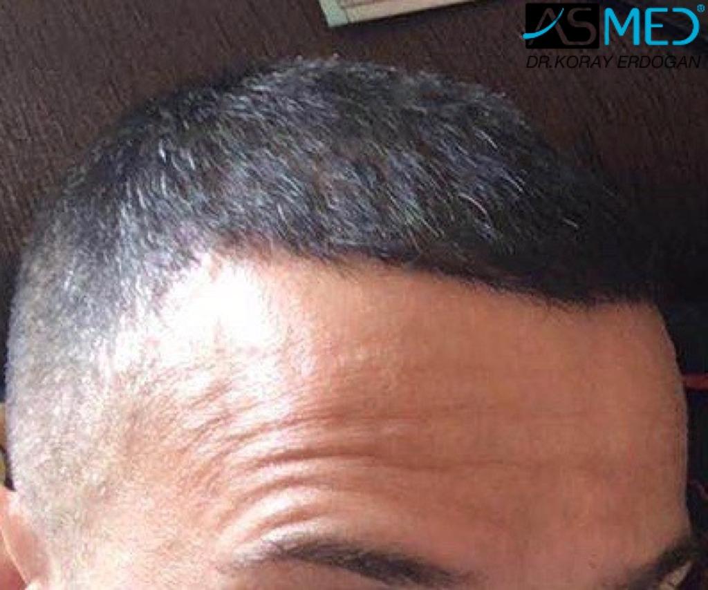 hair-transplant-erdogan-turkey (1)
