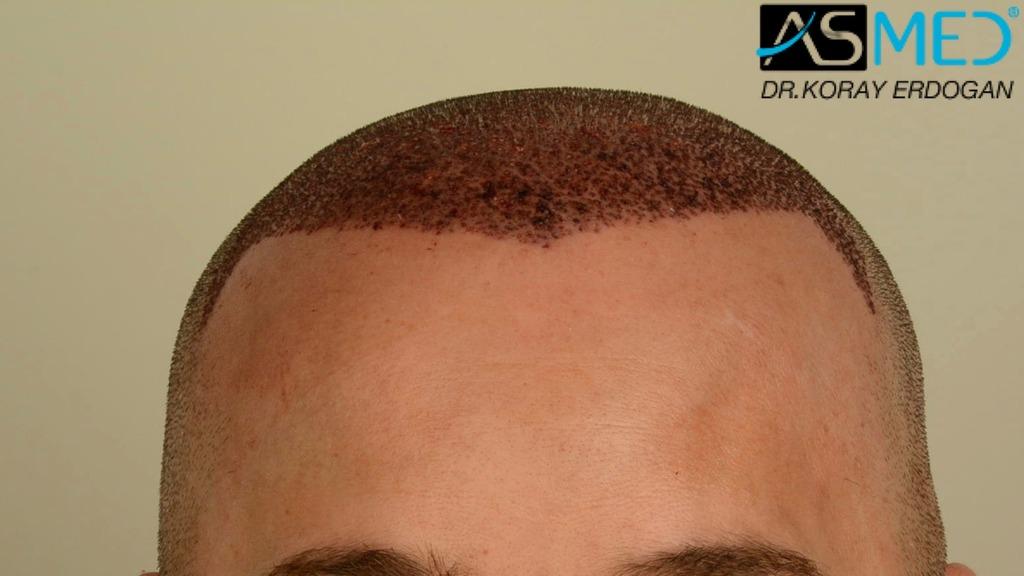 hair-transplant-erdogan-turkey (10)