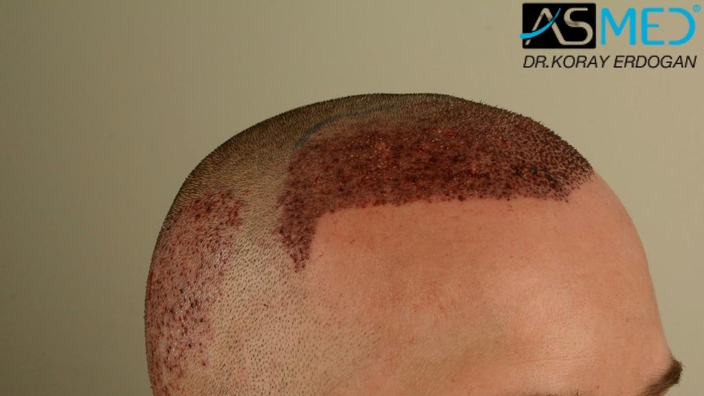 hair-transplant-erdogan-turkey (12)