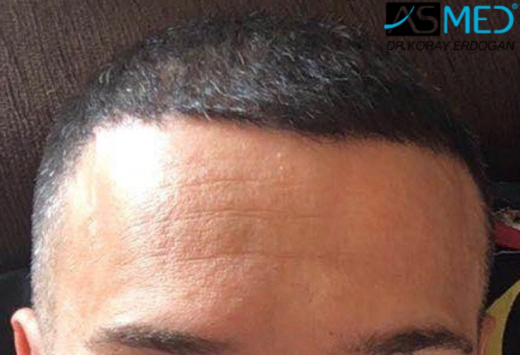 hair-transplant-erdogan-turkey (16)