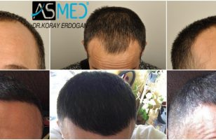hair-transplant-erdogan-turkey (4)
