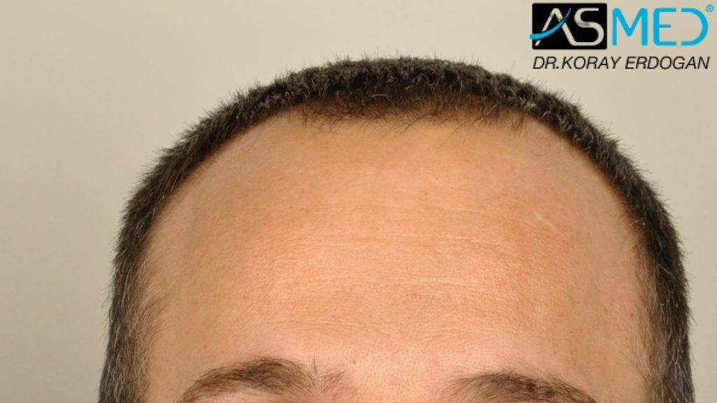hair-transplant-erdogan-turkey (5)