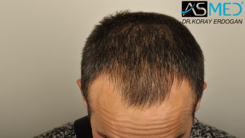 hair-transplant-erdogan-turkey (6)