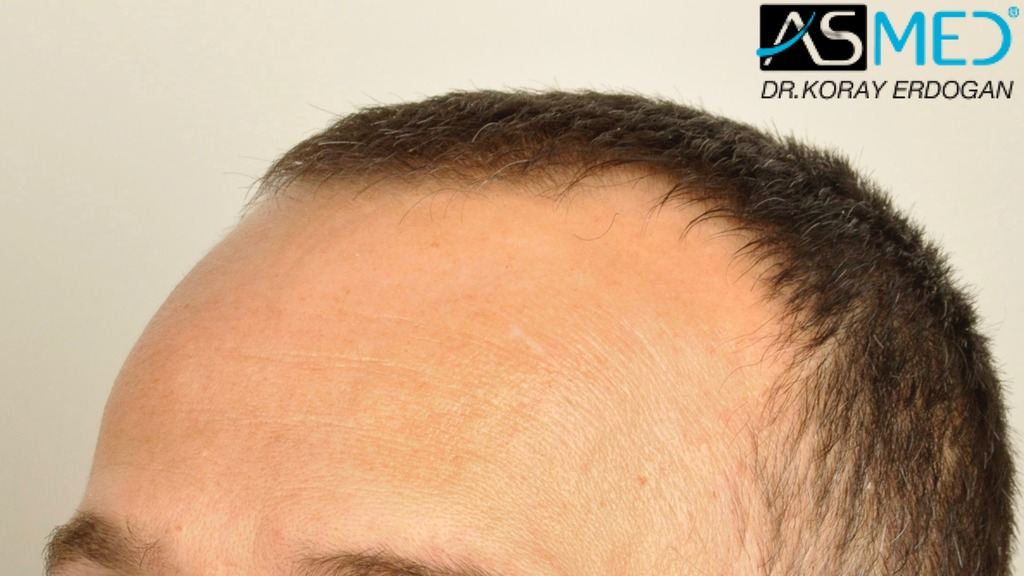 hair-transplant-erdogan-turkey (8)