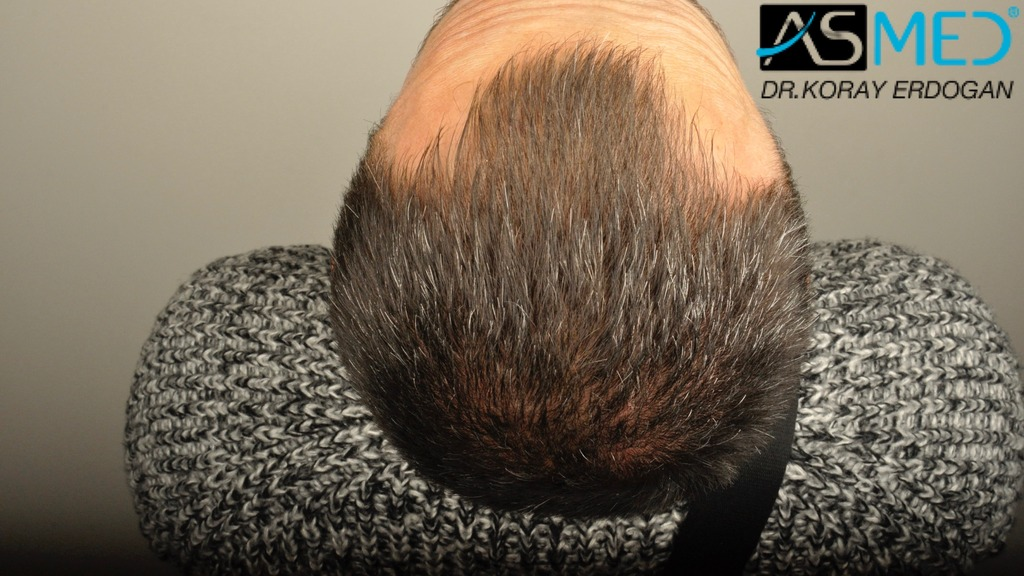 hair-transplant-erdogan-turkey (9)