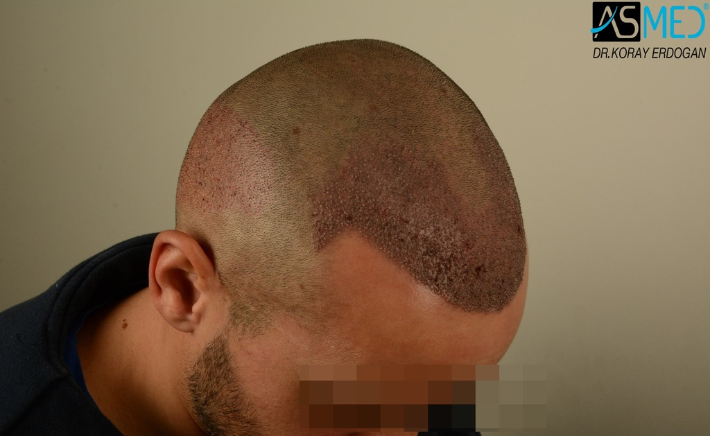 hair-transplant-istanbul (12)