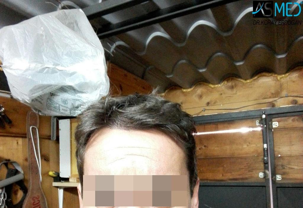 hair-transplant-istanbul (16)