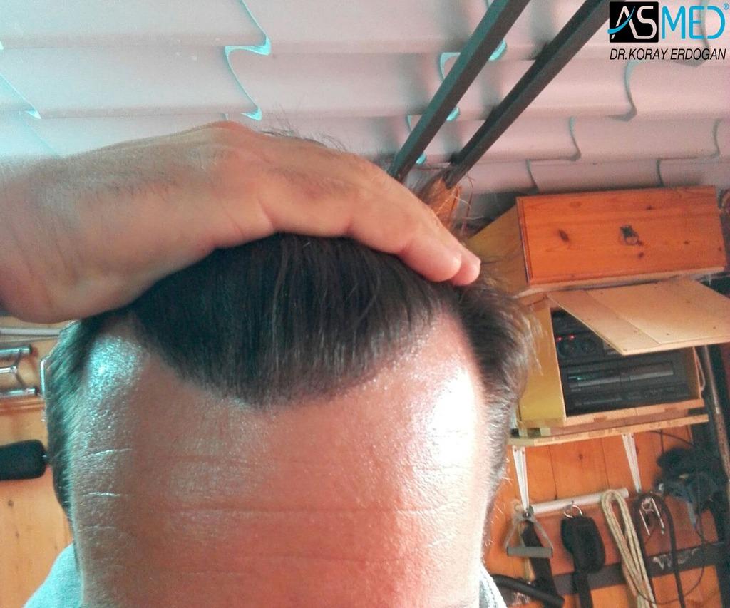 hair-transplant-istanbul (17)