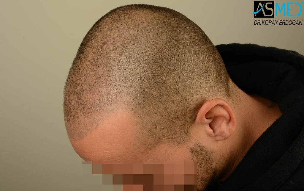 hair-transplant-istanbul (8)