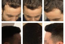 hair-transplant-koray-erdogan (12)