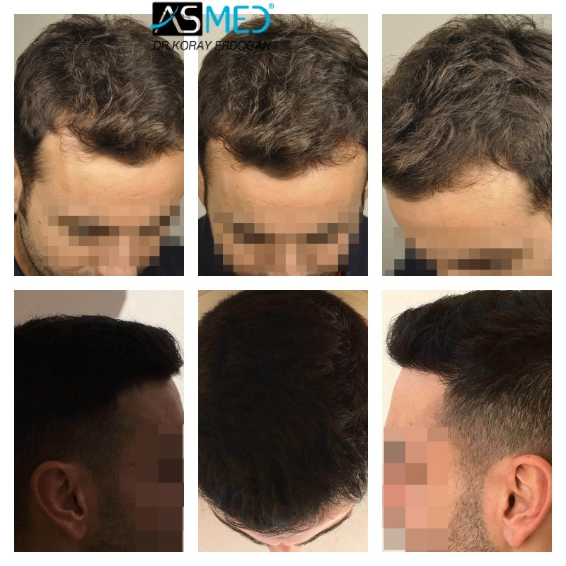 KORAY ERDOGAN(ASMED)-3211 GRAFTS RESULTS