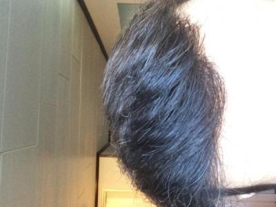 hair-transplant-money-turkey (24)
