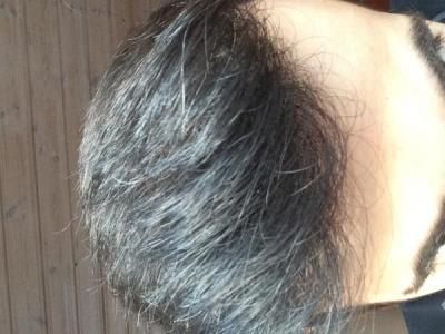 hair-transplant-money-turkey (25)