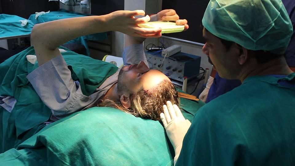IS HAIR TRANSPLANTATION A PAINFUL OPERATION?