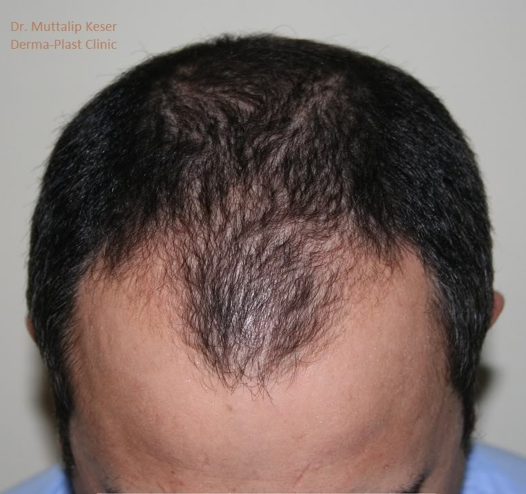 DERMAPLAST DR.KESER-2200 GRAFTS FUE TURKEY