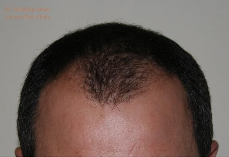 is-hair-transplant-in-turkey-safe (14)